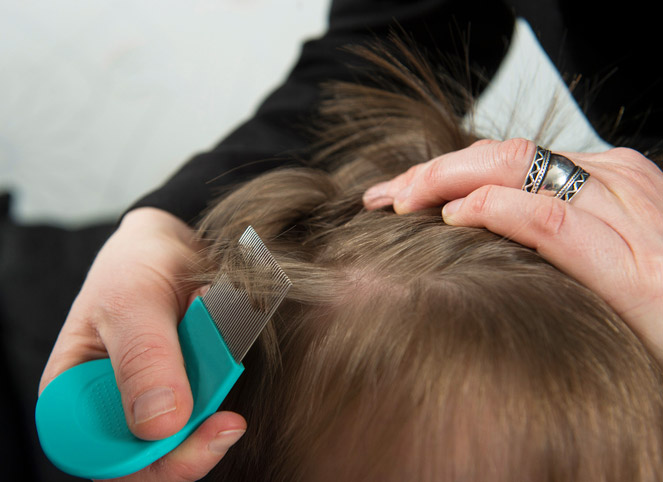 In home lice and nit removal service